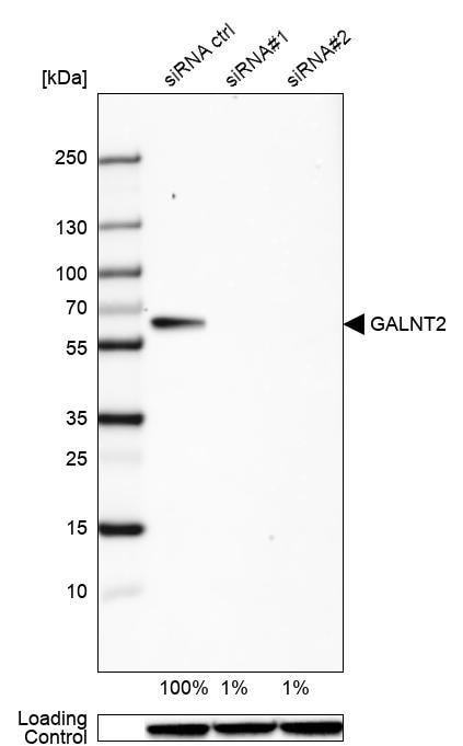 Western blot - Anti-GALNT2 antibody (ab262868)