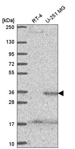 Western blot - Anti-Sprouty 4/Spry-4 antibody (ab262874)