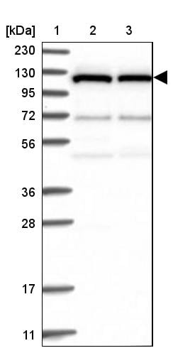Western blot - Anti-DNAJC6 antibody (ab262876)