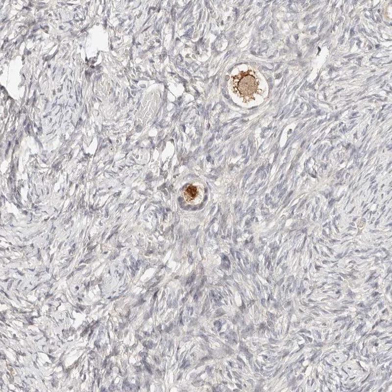 Immunohistochemistry (Formalin/PFA-fixed paraffin-embedded sections) - Anti-ZRANB1 antibody (ab262879)