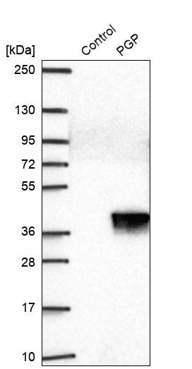 Western blot - Anti-PGP antibody (ab262880)