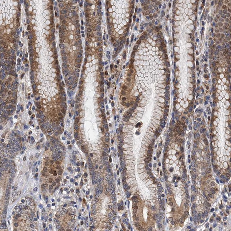 Immunohistochemistry (Formalin/PFA-fixed paraffin-embedded sections) - Anti-CMPK2 antibody (ab262881)