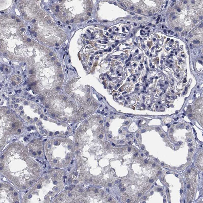 Immunohistochemistry (Formalin/PFA-fixed paraffin-embedded sections) - Anti-TTBK1 antibody (ab262884)