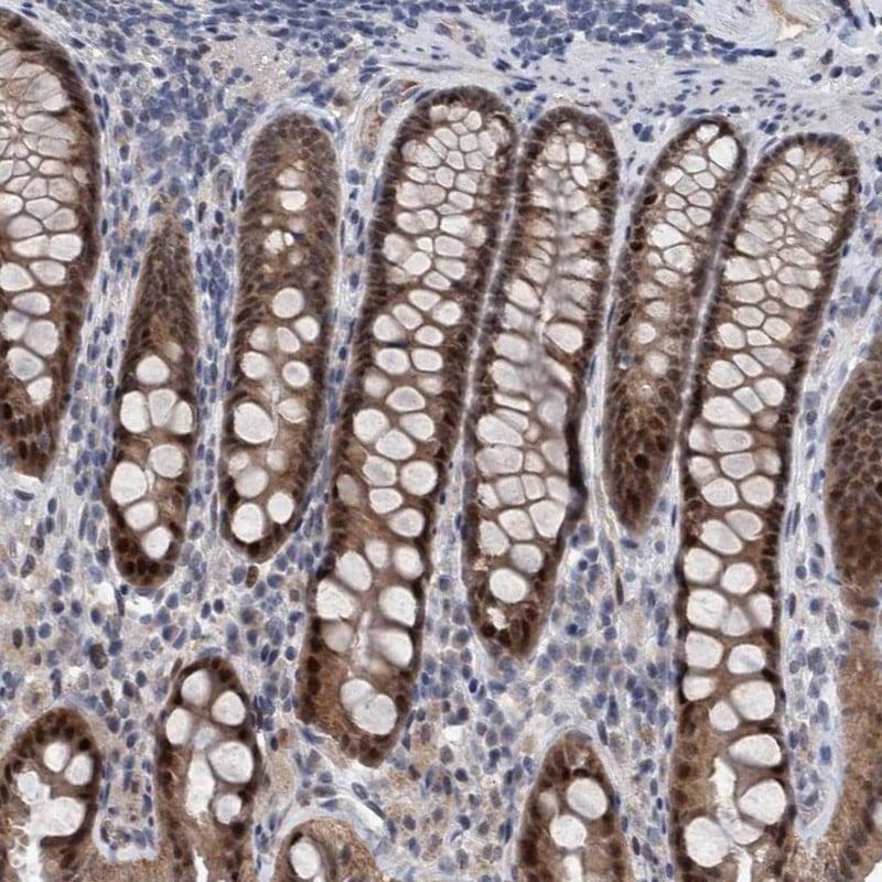 Immunohistochemistry (Formalin/PFA-fixed paraffin-embedded sections) - Anti-ESRP1 antibody (ab262886)