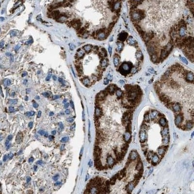 Immunohistochemistry (Formalin/PFA-fixed paraffin-embedded sections) - Anti-MDH2 antibody (ab262891)
