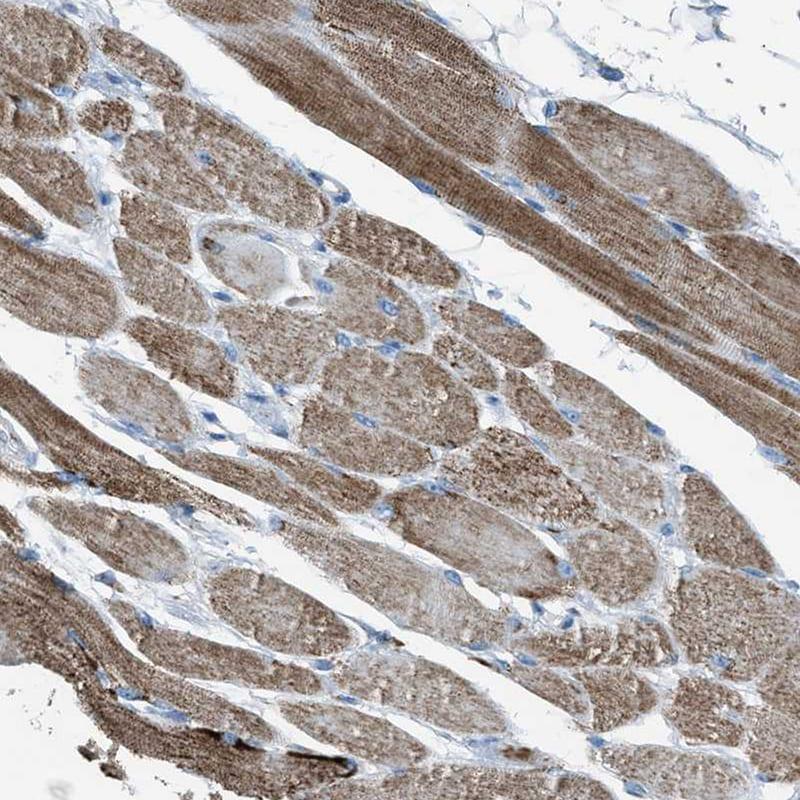 Immunohistochemistry (Formalin/PFA-fixed paraffin-embedded sections) - Anti-MDH2 antibody (ab262892)
