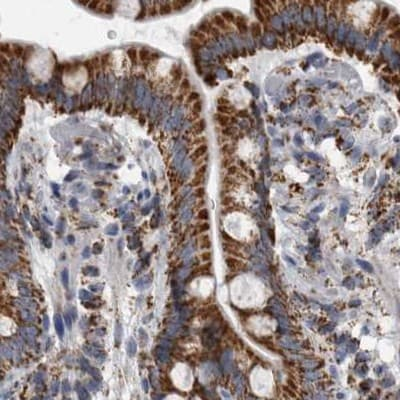 Immunohistochemistry (Formalin/PFA-fixed paraffin-embedded sections) - Anti-MDH2 antibody (ab262893)