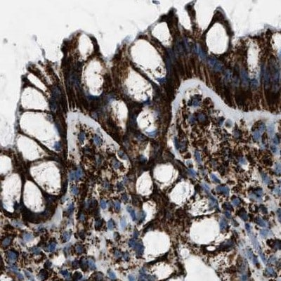 Immunohistochemistry (Formalin/PFA-fixed paraffin-embedded sections) - Anti-MDH2 antibody (ab262894)
