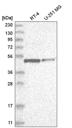 Western blot - Anti-ATP7b antibody (ab262896)