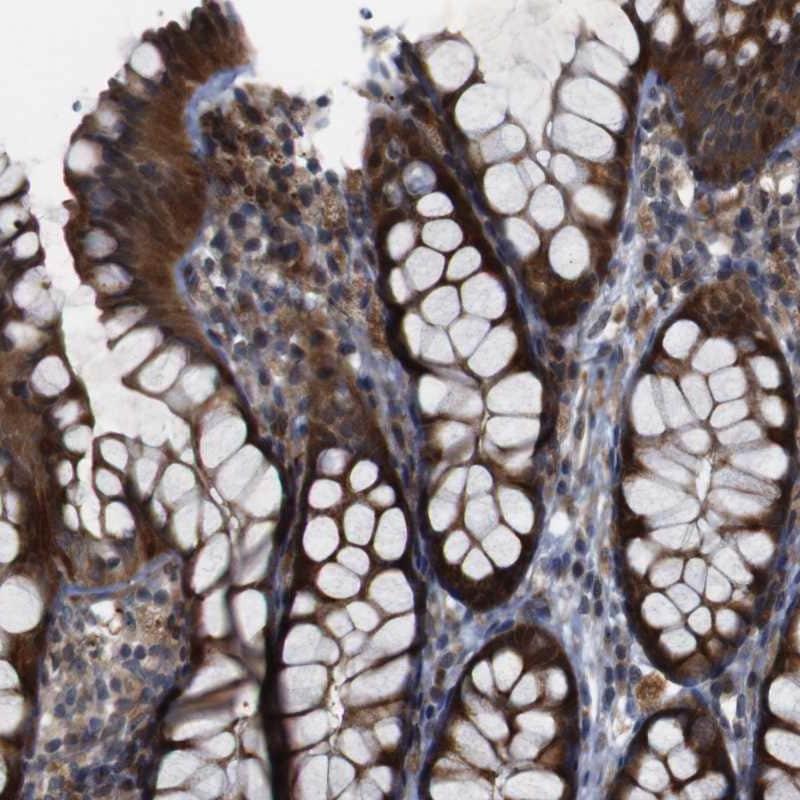 Immunohistochemistry (Formalin/PFA-fixed paraffin-embedded sections) - Anti-IGFBP6 antibody (ab262898)