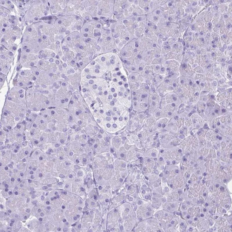 Immunohistochemistry (Formalin/PFA-fixed paraffin-embedded sections) - Anti-Lactoferrin antibody (ab262901)