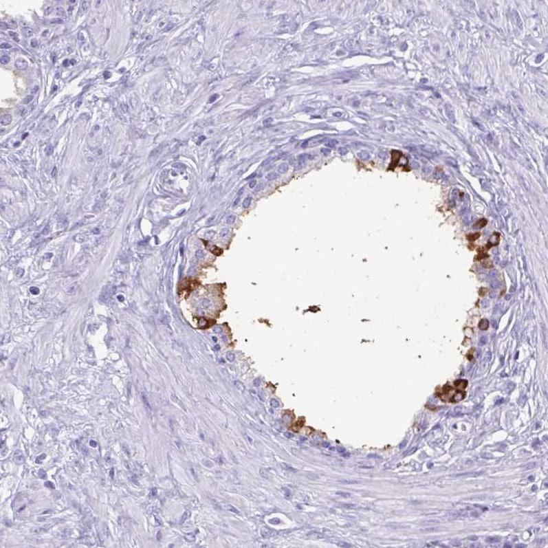 Immunohistochemistry (Formalin/PFA-fixed paraffin-embedded sections) - Anti-Lactoferrin antibody (ab262902)