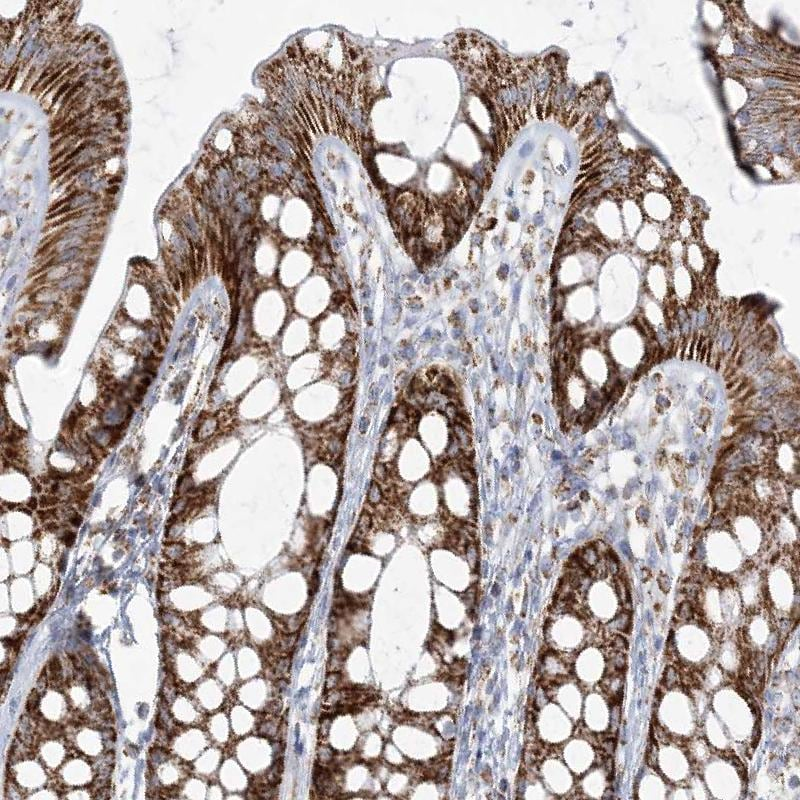 Immunohistochemistry (Formalin/PFA-fixed paraffin-embedded sections) - Anti-PCCB antibody (ab262905)