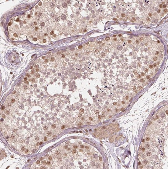 Immunohistochemistry (Formalin/PFA-fixed paraffin-embedded sections) - Anti-BRD9 antibody (ab262910)