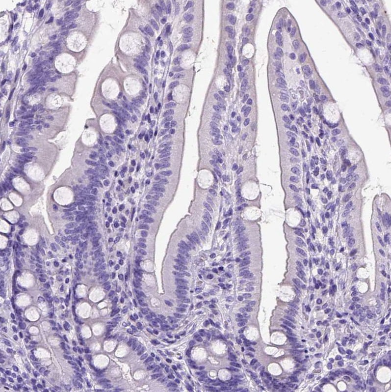 Immunohistochemistry (Formalin/PFA-fixed paraffin-embedded sections) - Anti-IGF2 antibody (ab262911)