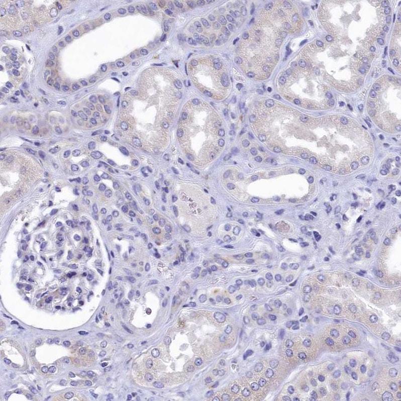 Immunohistochemistry (Formalin/PFA-fixed paraffin-embedded sections) - Anti-Intrinsic Factor antibody (ab262912)