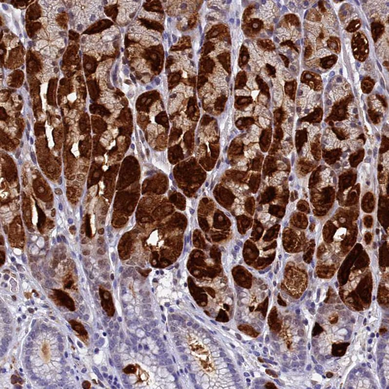Immunohistochemistry (Formalin/PFA-fixed paraffin-embedded sections) - Anti-Intrinsic Factor antibody (ab262912)