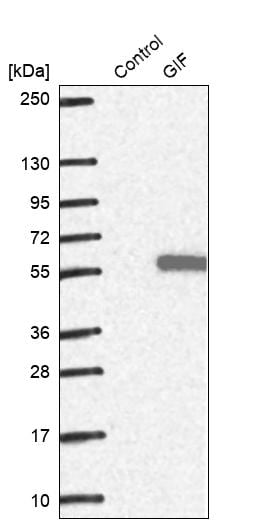 Western blot - Anti-Intrinsic Factor antibody (ab262912)
