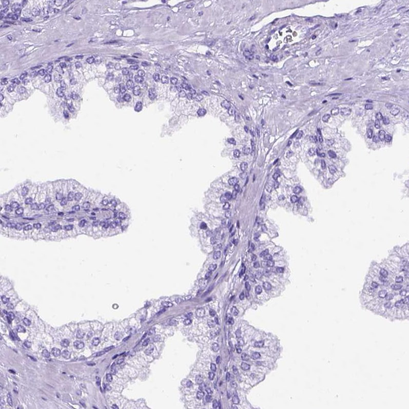 Immunohistochemistry (Formalin/PFA-fixed paraffin-embedded sections) - Anti-MEOX 2 antibody (ab262916)