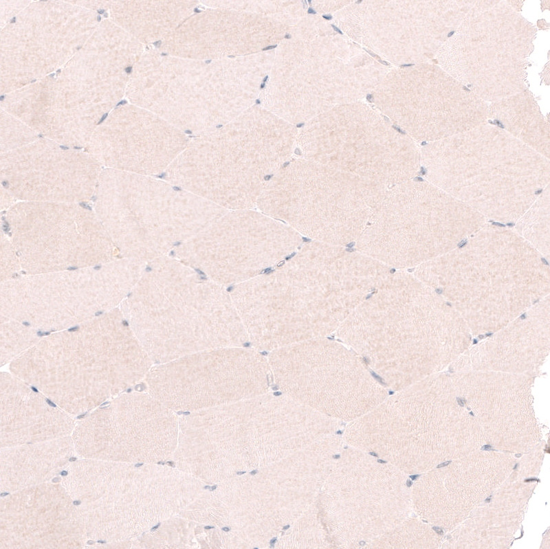 Immunohistochemistry (Formalin/PFA-fixed paraffin-embedded sections) - Anti-RBM7 antibody (ab262917)