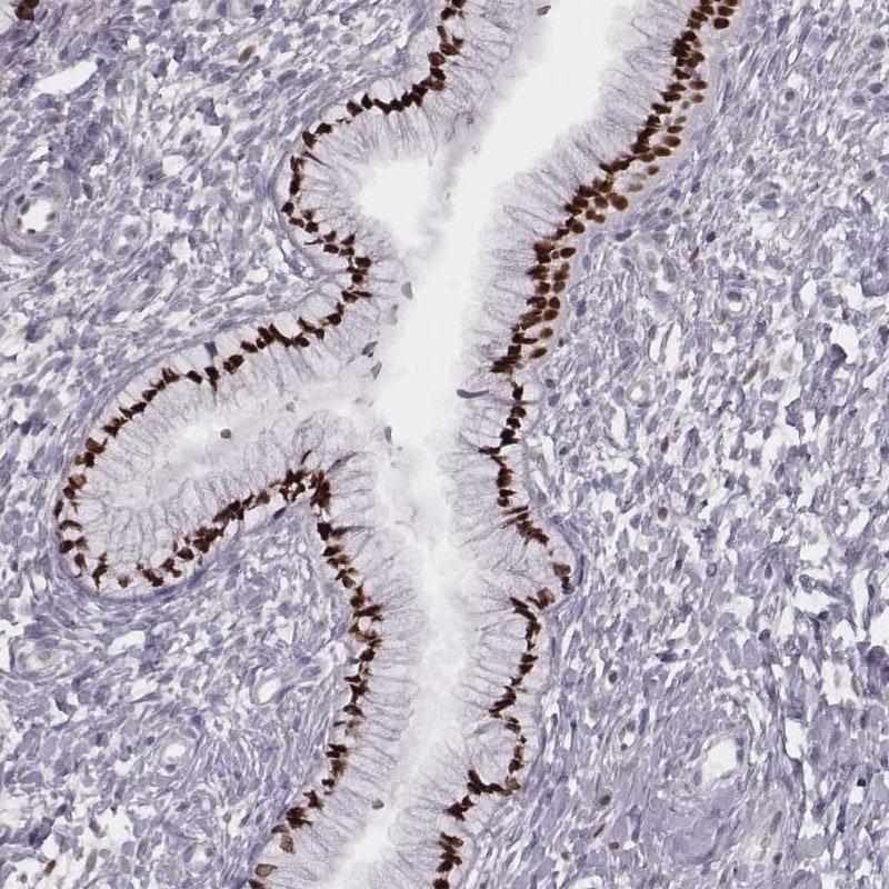 Immunohistochemistry (Formalin/PFA-fixed paraffin-embedded sections) - Anti-MSX1 antibody (ab262919)