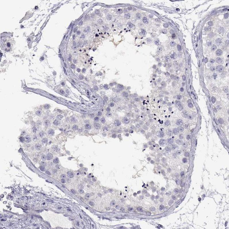Immunohistochemistry (Formalin/PFA-fixed paraffin-embedded sections) - Anti-Neuropeptide EI NH2 antibody (ab262921)