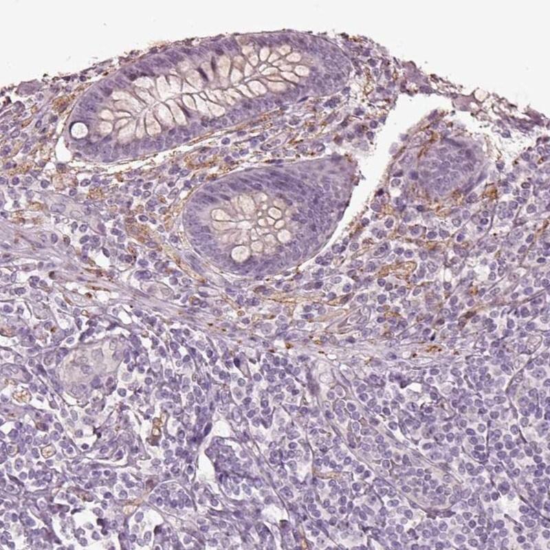 Immunohistochemistry (Formalin/PFA-fixed paraffin-embedded sections) - Anti-Galanin antibody (ab262924)