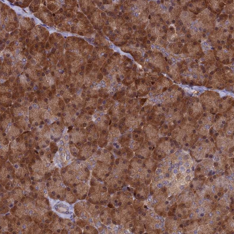 Immunohistochemistry (Formalin/PFA-fixed paraffin-embedded sections) - Anti-ARHGAP18 antibody (ab262926)