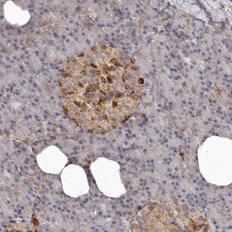 Immunohistochemistry (Formalin/PFA-fixed paraffin-embedded sections) - Anti-Bax antibody (ab262929)