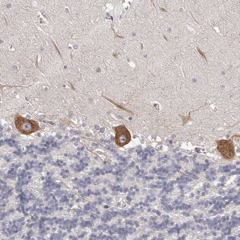 Immunohistochemistry (Formalin/PFA-fixed paraffin-embedded sections) - Anti-OTUD3 antibody (ab262933)