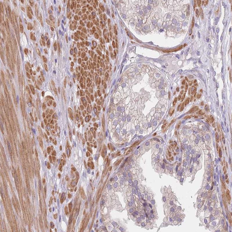 Immunohistochemistry (Formalin/PFA-fixed paraffin-embedded sections) - Anti-nSMase-3 antibody (ab262935)