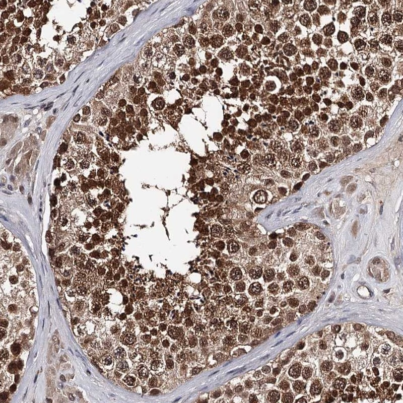 Immunohistochemistry (Formalin/PFA-fixed paraffin-embedded sections) - Anti-GTSF1 antibody (ab262936)