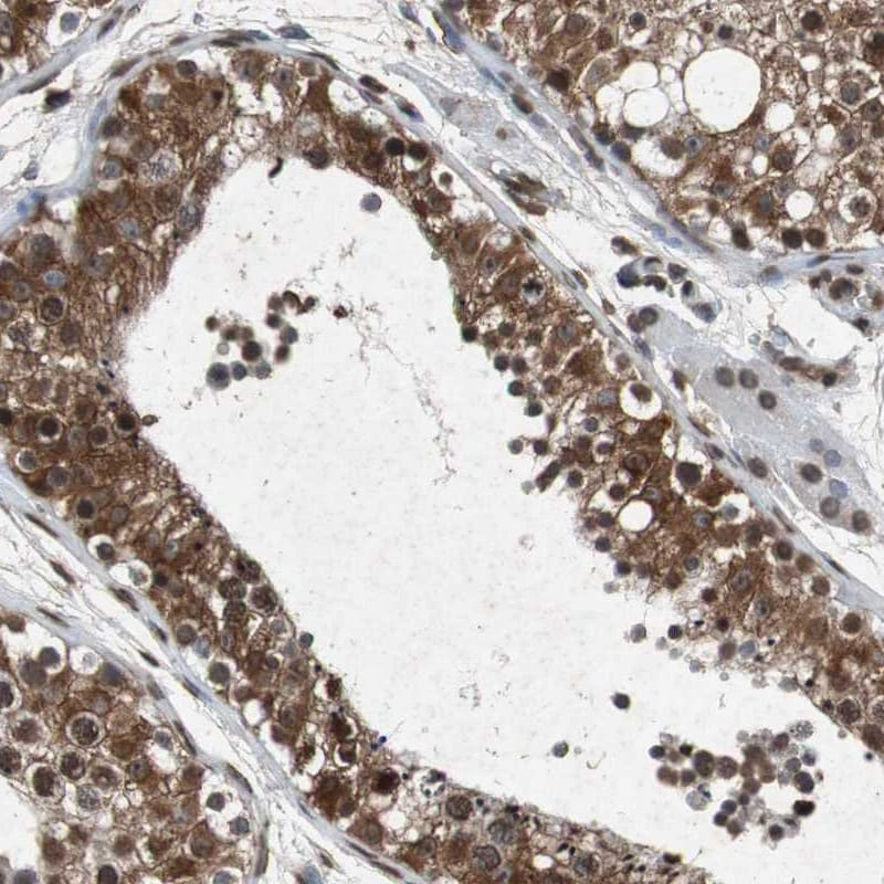 Immunohistochemistry (Formalin/PFA-fixed paraffin-embedded sections) - Anti-FATP3 antibody (ab262939)