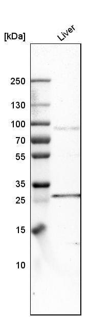 Western blot - Anti-FATP3 antibody (ab262939)