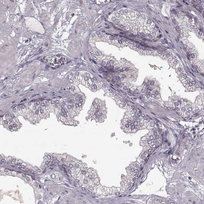 Immunohistochemistry (Formalin/PFA-fixed paraffin-embedded sections) - Anti-CD168 antibody (ab262941)