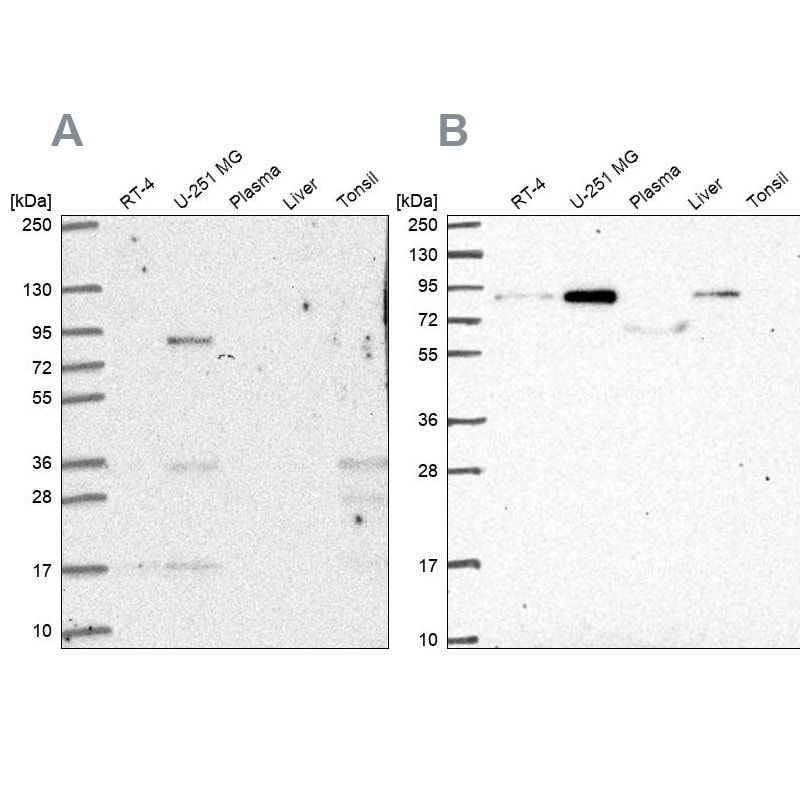 Western blot - Anti-LH1 antibody (ab262947)