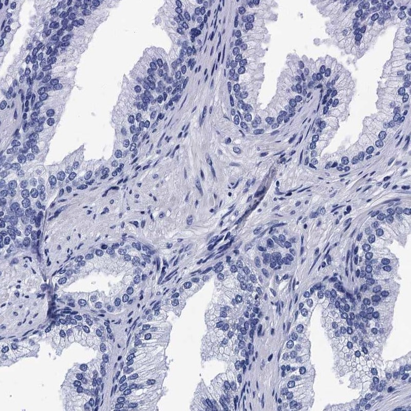 Immunohistochemistry (Formalin/PFA-fixed paraffin-embedded sections) -  (ab262964)