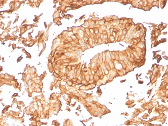 Immunohistochemistry (Formalin/PFA-fixed paraffin-embedded sections) - Anti-Uroplakin Ib/UPIb antibody [UPK1B/3081] (ab263454)