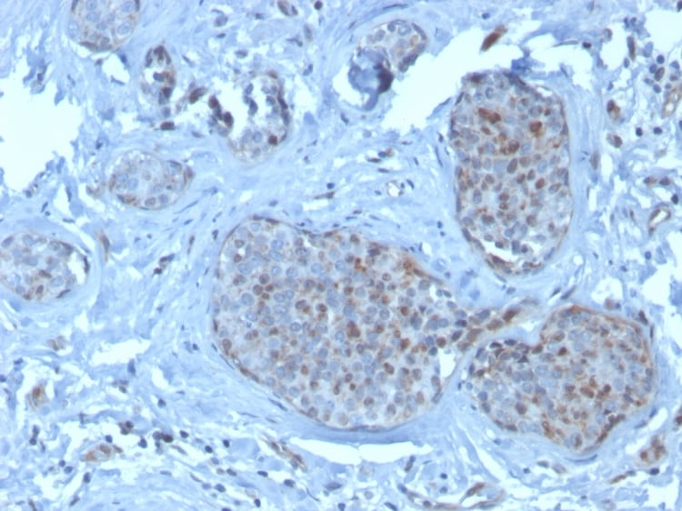 Immunohistochemistry (Formalin/PFA-fixed paraffin-embedded sections) - Anti-MDM2 antibody [SMP14] - BSA and Azide free (ab263457)