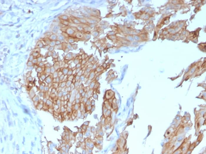 Immunohistochemistry (Formalin/PFA-fixed paraffin-embedded sections) - Anti-Uroplakin Ib/UPIb antibody [UPK1B/3102] - BSA and Azide free (ab263459)
