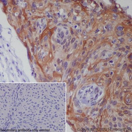 Immunohistochemistry (Formalin/PFA-fixed paraffin-embedded sections) - Anti-CXCR4 antibody [UMB2]