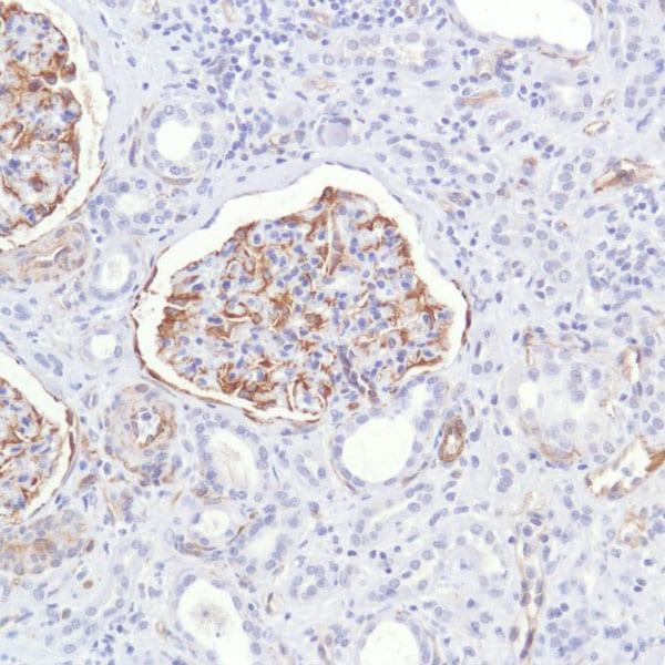 Immunohistochemistry (Formalin/PFA-fixed paraffin-embedded sections) - Anti-Nestin antibody [SP103]