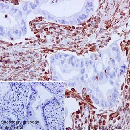 Immunohistochemistry (Formalin/PFA-fixed paraffin-embedded sections) - Anti-Vimentin antibody [EPR3776] - Cytoskeleton Marker