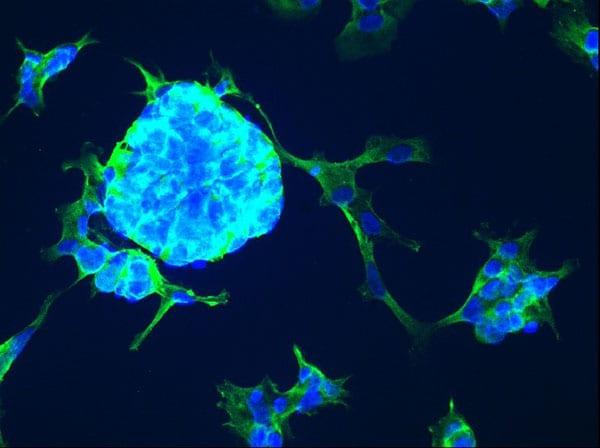 Immunocytochemistry/ Immunofluorescence - Anti-TREM2 antibody [EPR20243]