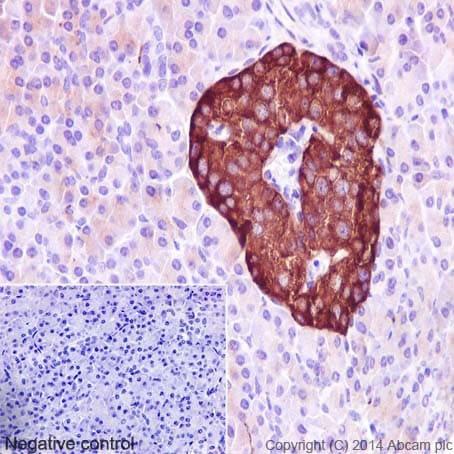 Immunohistochemistry (Formalin/PFA-fixed paraffin-embedded sections) - Anti-Synaptophysin antibody [YE269]