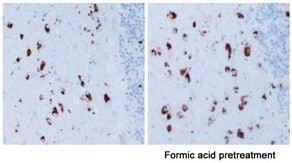 Immunohistochemistry (Formalin/PFA-fixed paraffin-embedded sections) - Anti-Alpha-synuclein antibody [LB 509]