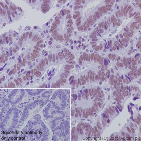 Immunohistochemistry (Formalin/PFA-fixed paraffin-embedded sections) - Anti-KDM1 / LSD1 antibody [EPR6825] - Nuclear Marker