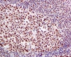 Immunohistochemistry (Formalin/PFA-fixed paraffin-embedded sections) - Anti-HP1 alpha antibody [EPR5777] - Heterochromatin marker