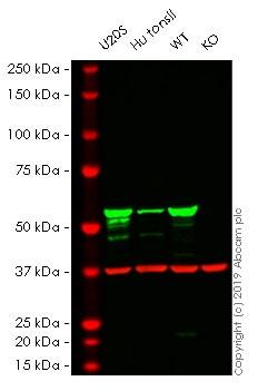 Western blot - Human VIM knockout HeLa cell lysate (ab263775)