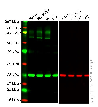Western blot - Human APP knockout HEK293T cell lysate (ab263777)